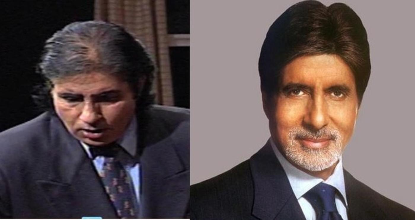 Bollywood Celebs who have Undergone Hair Transplants or Wear a Wig